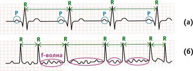 Как восстановить нормальный ритм сердца