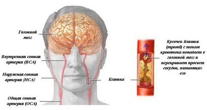 Поражения артерий головного мозга