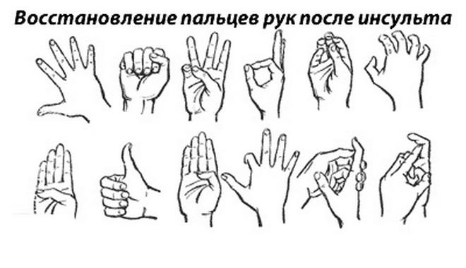 Восстановление пальцев рук после инсульта