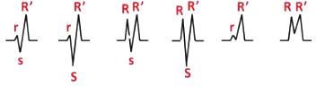 Существуют разные варианты нарушения проводимости ПНПГ в отведениях V1 и V2