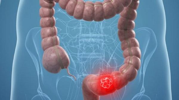 Инфаркт кишечника миниатюра