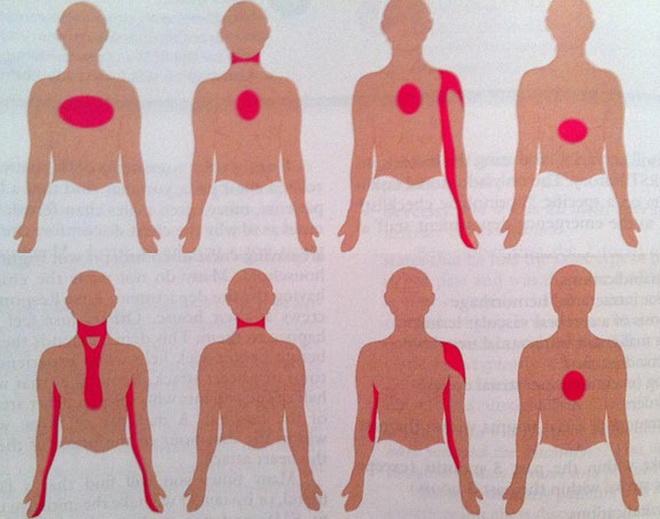 Локализация боли при инфаркте