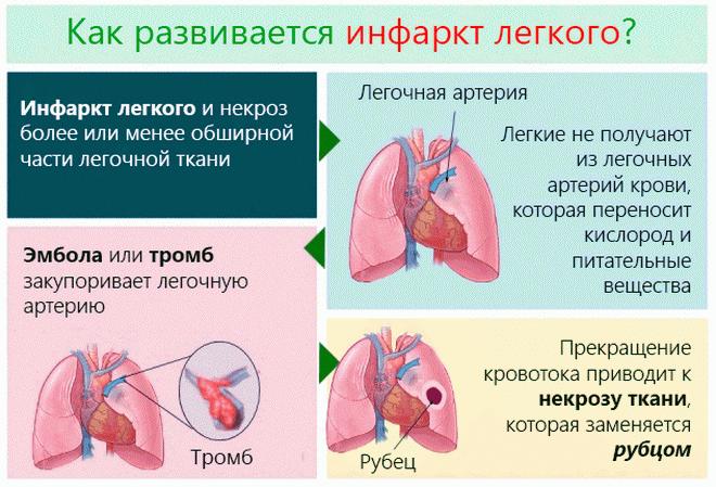 Развитие инфаркта легкого