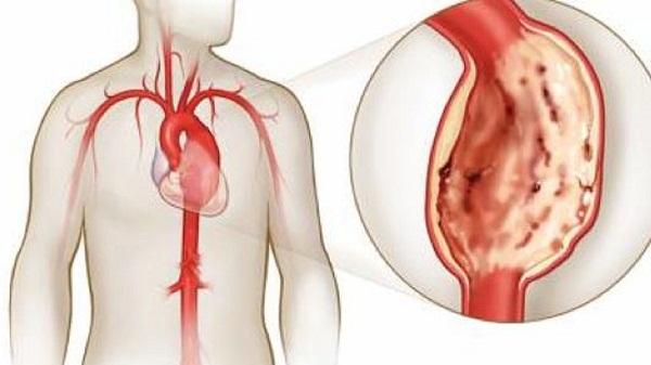 Нестенозирующий атеросклероз внечерепных отделов брахиоцефальных артерий