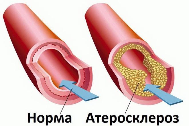 Норма и атеросклероз
