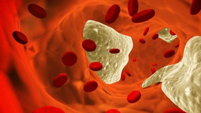 Какие осложнения и последствия есть у атеросклероза сосудов головного мозга: чем он опасен?