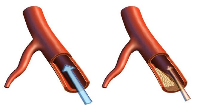 атеросклероз миниатюра