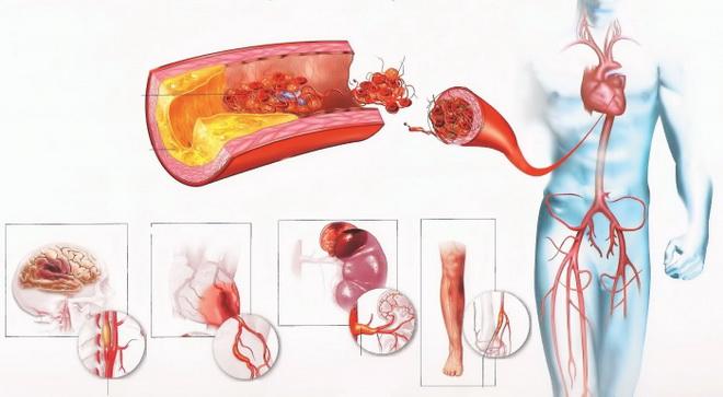 Диффузный атеросклероз