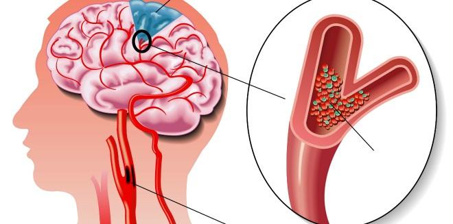Гипоплазия сосудов мозга