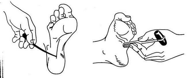 Симптом Бабинского