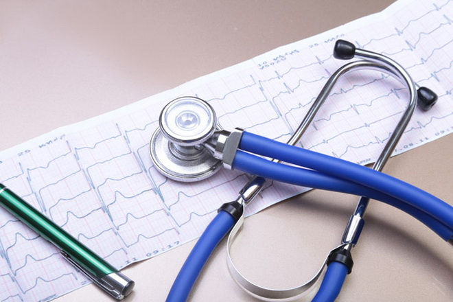 Диагностика аритмии