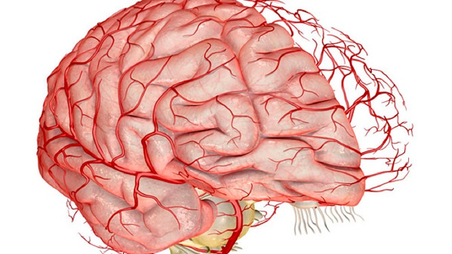 Гипоплазия сосудов мозга миниатюра