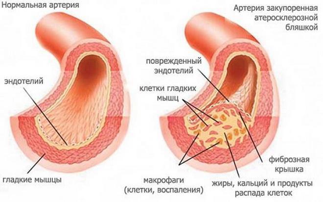 Атеросклеротический кардиосклероз