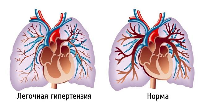 Вторичная легочная гипертензия