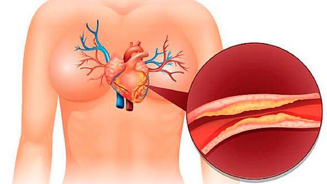 Атеросклеротический кардиосклероз миниатюра