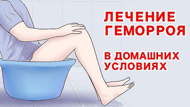 Лечение геморроя в домашних условиях миниатюра