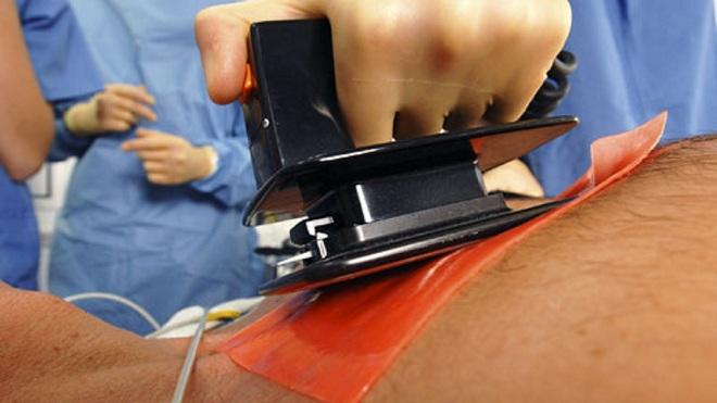 Аритмогенная дисплазия правого желудочка миниатюра