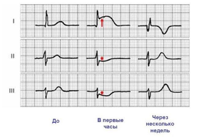 Динамика изменения ЭКГ при инфаркте миокарда