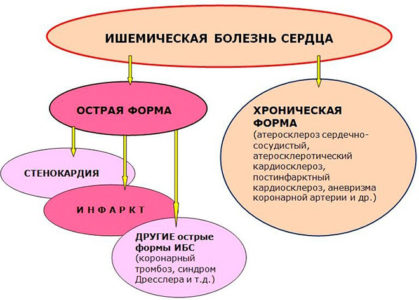 Симптомы ИБС