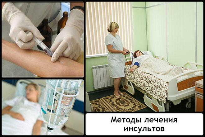 Методы лечения инсультов