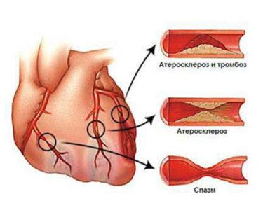 Одна из причин стенокардии