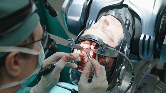 operacia-na-mozge