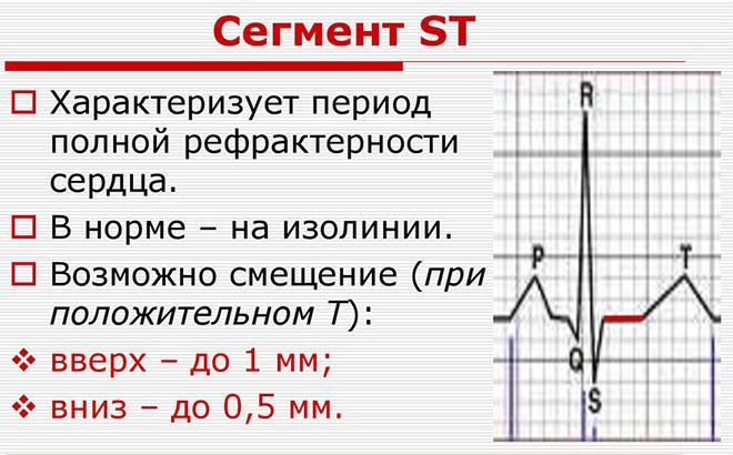 Сегмент ST на кардиограмме