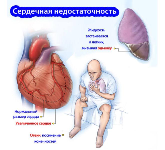 serdechnaya_nedostatochnost