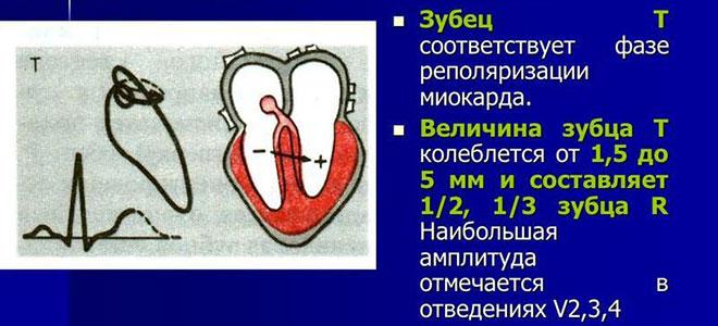 Зубец Т на кардиограмме