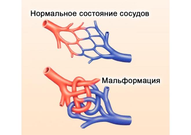 Артериовенозная гемангиома
