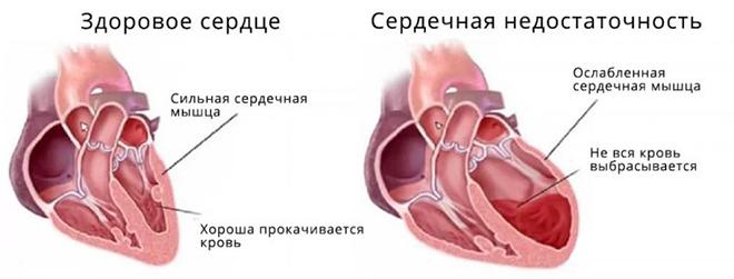 Изменения в сердце при сердечной недостаточности