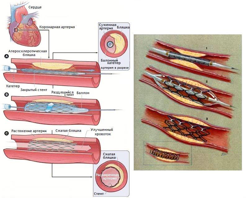 Баллонная ангиопластика сосудов