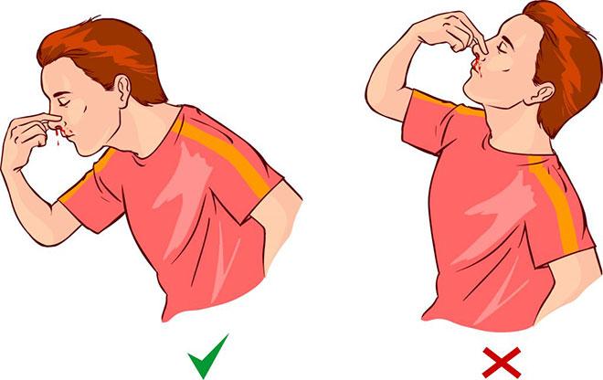 Правильное положение, чтобы остановить кровь из носа