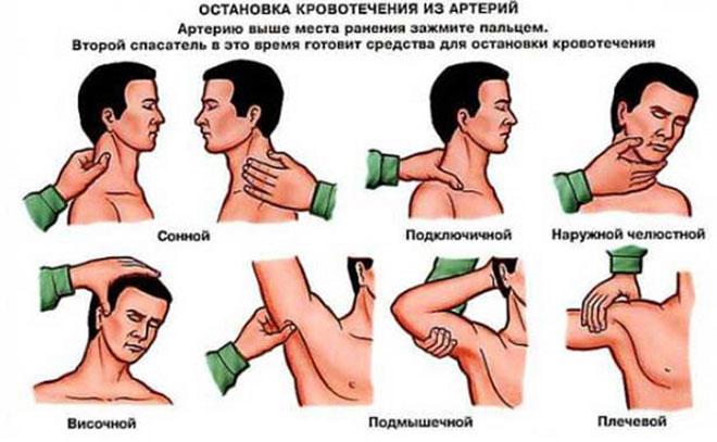 Остановка кровотечения из артерии