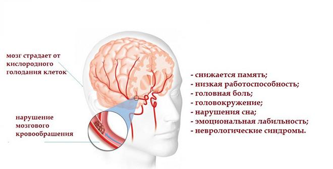 Энцефалопатия головного мозга суть патологии