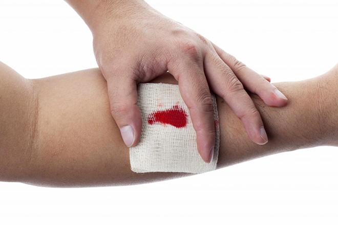 Помощь при венозном кровотечении