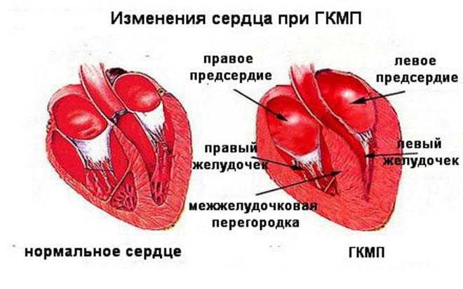 Гипертрофическая обструктивная кардиомиопатия механизм развития