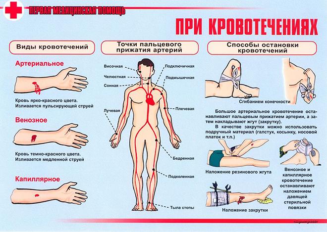 Методы лечения кровотечения