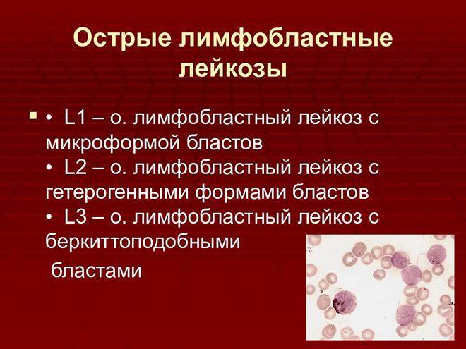 Лимфобластный лейкоз причины