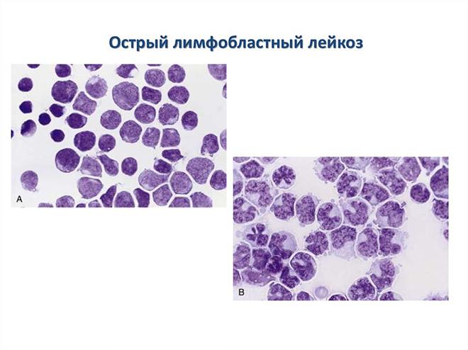Лимфобластный лейкоз что это такое