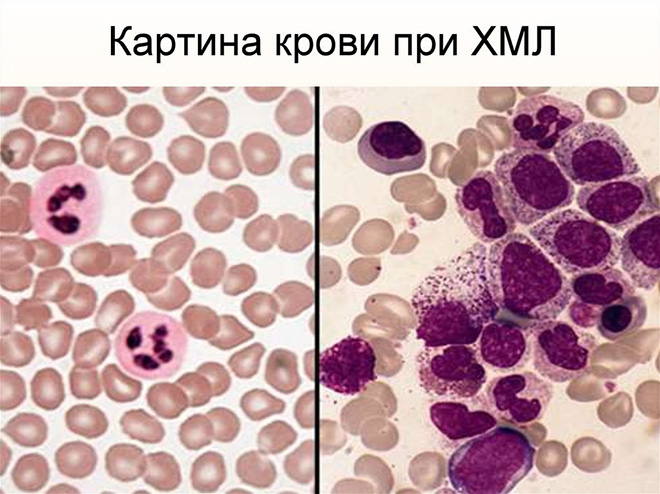 Острый миелобластный лейкоз что происходит в организме