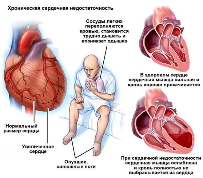 Симптомы развития хронической сердечной недостаточности