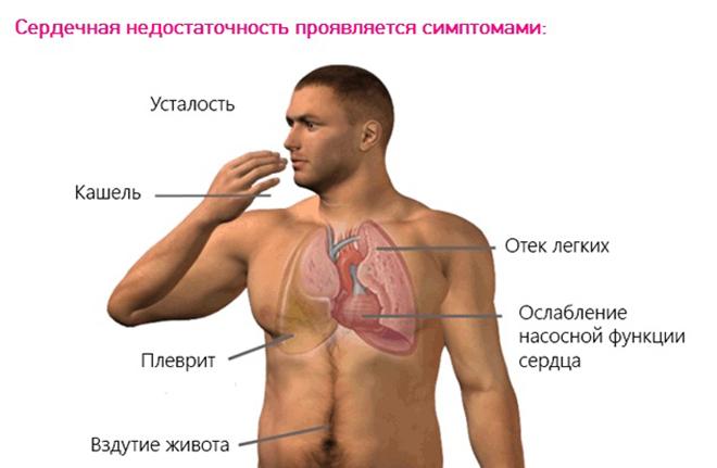 Характерные симптомы и проявления патологии