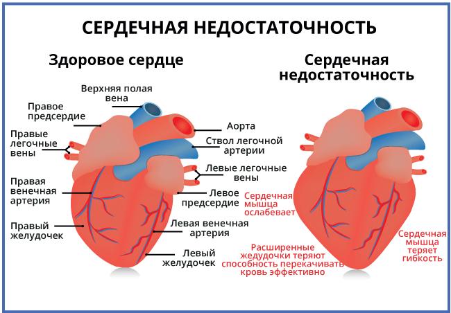 Классификация хронической сердечной недостаточности