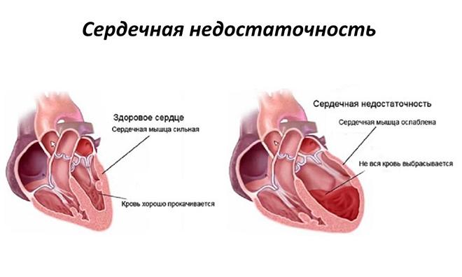 Причины развития патологии