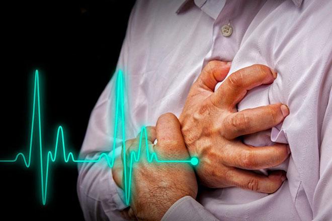 Классификация синдрома внезапной смерти