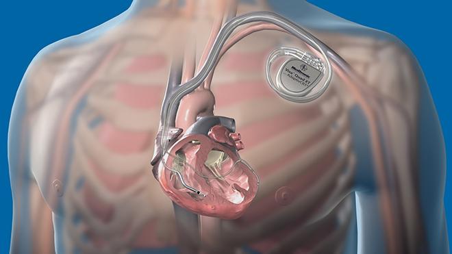 имплантация кардиовертер-дефибриллятора