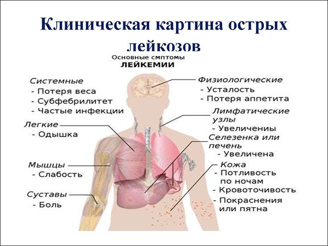 Острый миелобластный лейкоз клиническое проявление