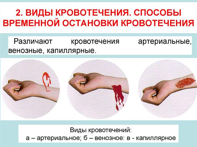 Классификация и виды кровотечения