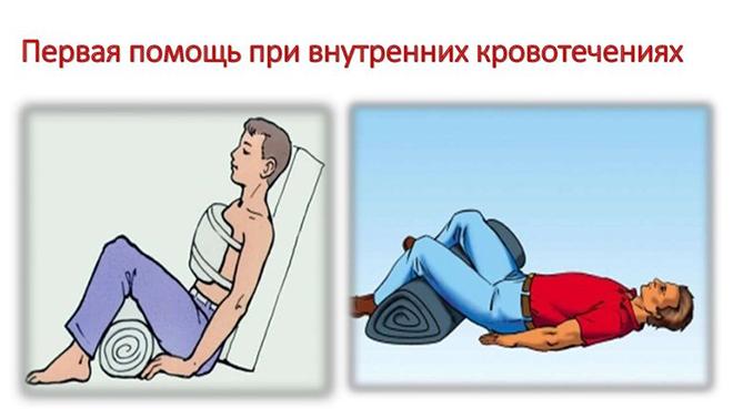 Помощь при внутреннем кровотечении